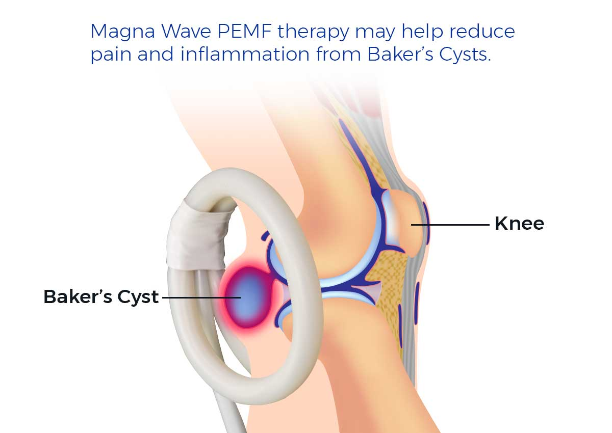 Magna Wave PEMF therapy may help reduce pain and inflammation from Baker's Cysts
