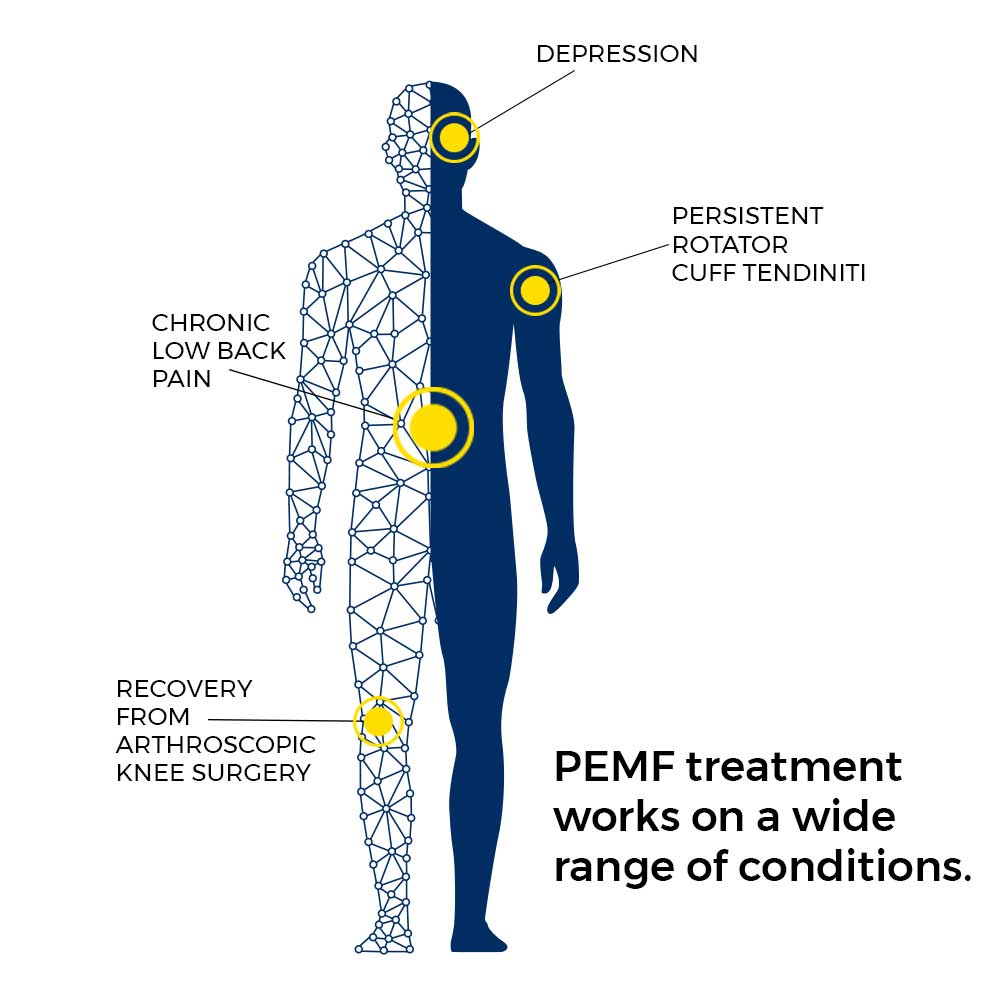 PEMF treatment works on a wide range of conditions.