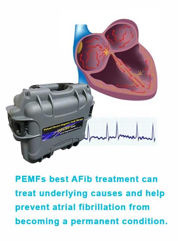 Best AFib Treatment with Magna Wave PEMF
