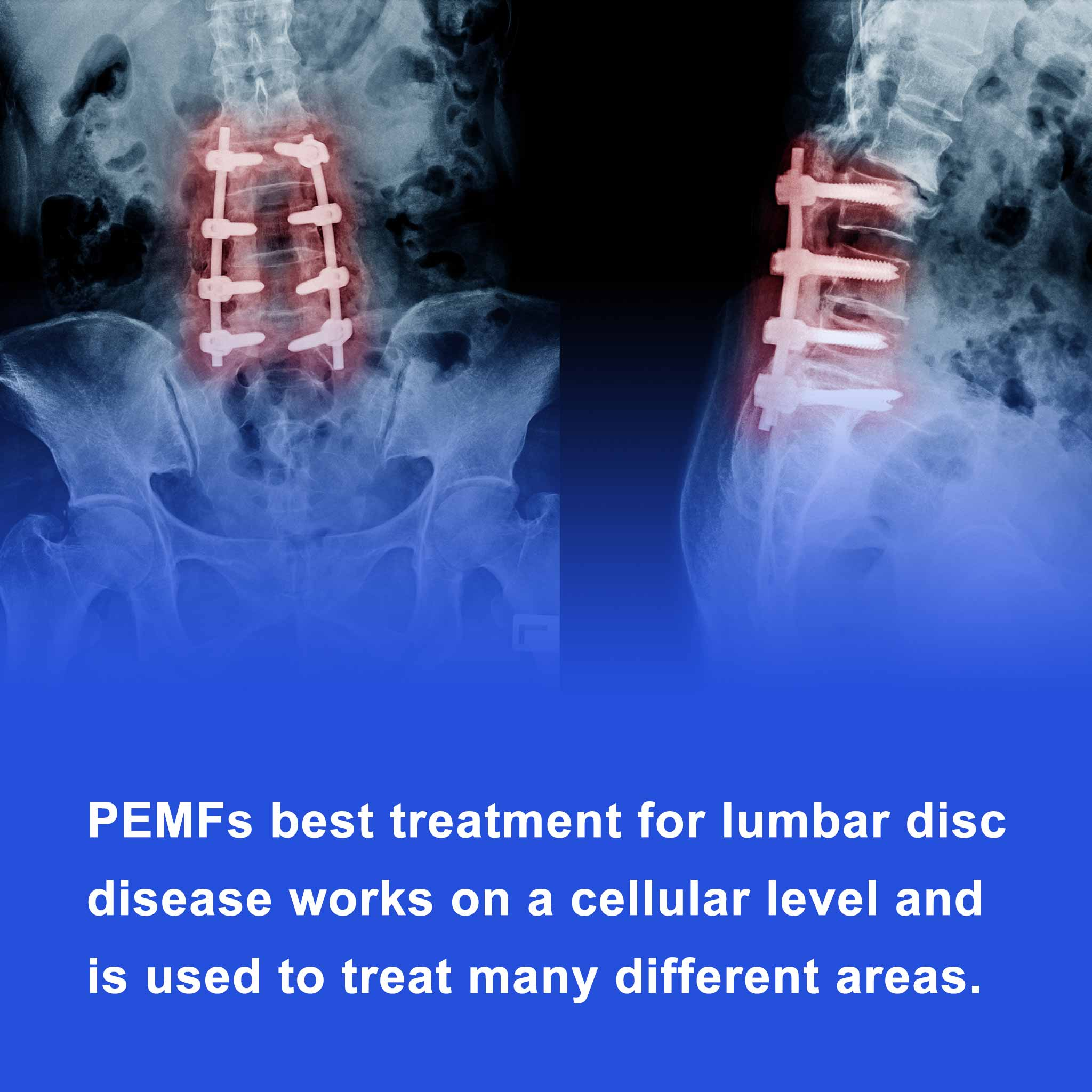 PEMFs best treatment for lumbar disc disease works on a cellular level and is used to treat many different areas.