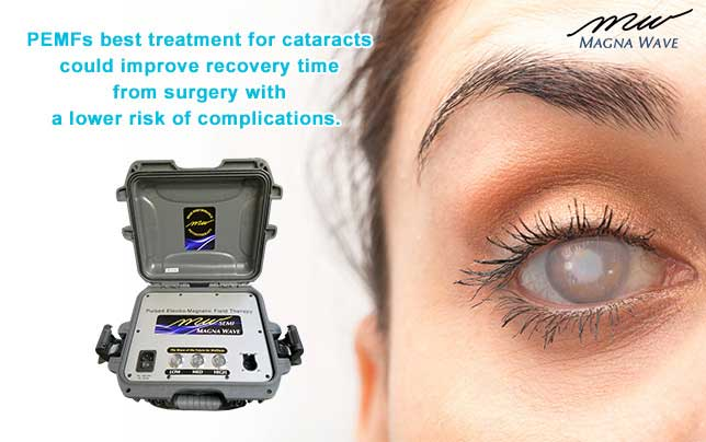 PEMFs best treatment for cataracts could improve recovery time from surgery with a lower risk of complications.