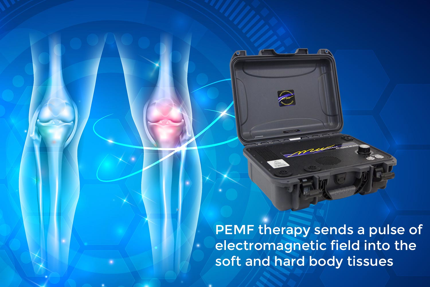 PEMF therapy sends a pulse of electromagnetic field into the soft and hard body tissues.