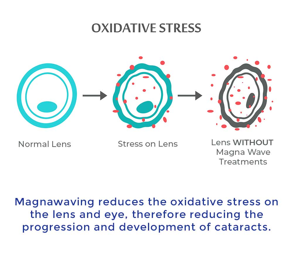 Magnawaving reduces the oxidative stress on the lens and eye, therefore reducing the progression and developmentof cataracts.