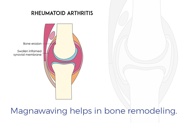 Magnawaving helps in bone remodeling.