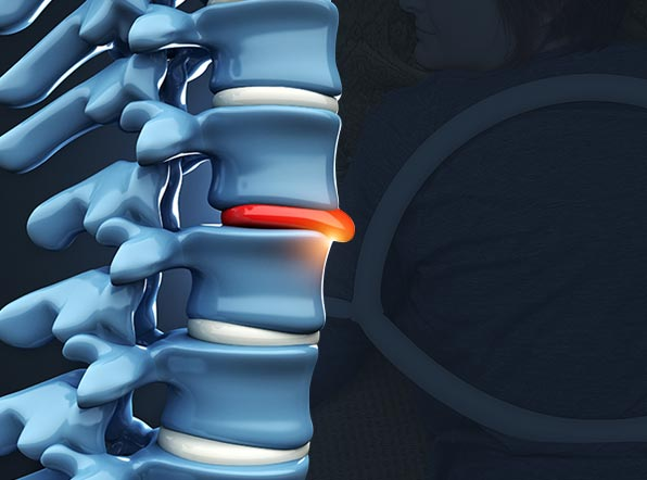 Non-Surgical Treatment for Herniated Disc with PEMF Therapy
