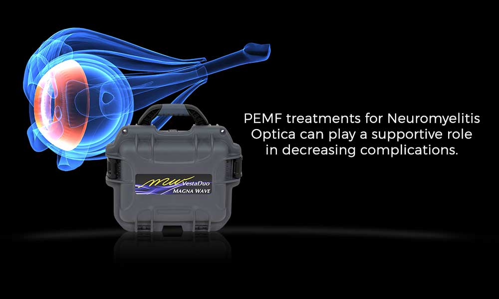 PEMF treatments for Neuromyelitis Optica can play a supportive role in decreasing complications