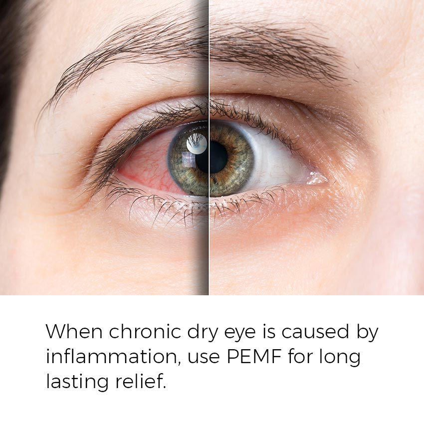 When chronic dry eye is caused by inflammation, use PEMF for long lasting relief.