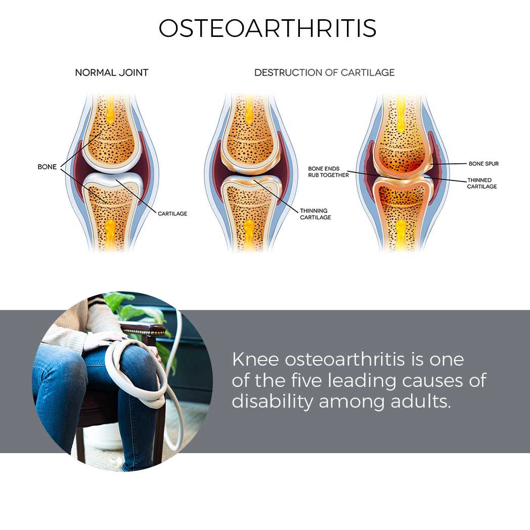 Magna Wave PEMF Best Treatment for Osteoarthritis - Diagram of Normal Knee Joint & Destruction of Cartilage - Knee osteoarthritis is one of the five leading causes of disability among non-institutionalized adults.