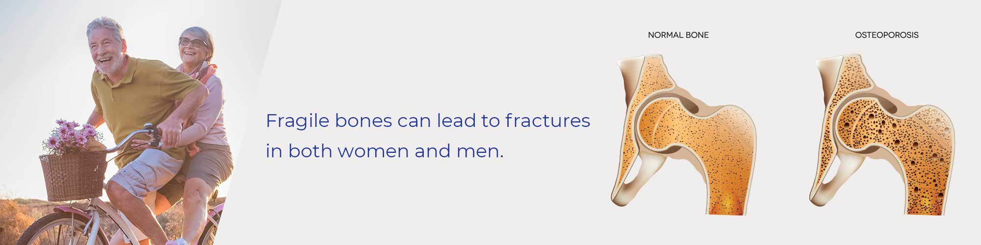Fragile bones can lead to fractures in both women and men.